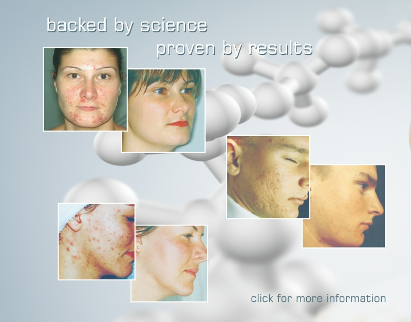 Oxypeel the answer to fighting the effects of daily stress