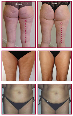 Three reasons why non-invasive body contouring triumphs surgical alternatives